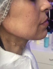 After jawline treatment in London - Dr Dray, cosmetic medicine