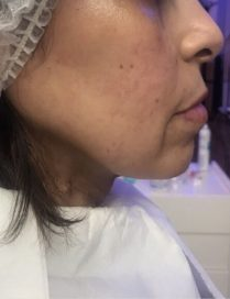 Before jawline treatment in London - Dr Dray, cosmetic medicine