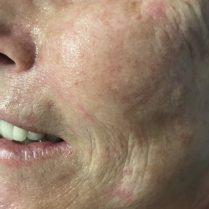 Photo after skin treatment to improve skin quality - Dr Dray London