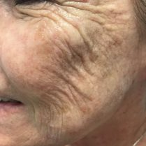 Before cosmetic treatment for skin quality in London - Dr Dray