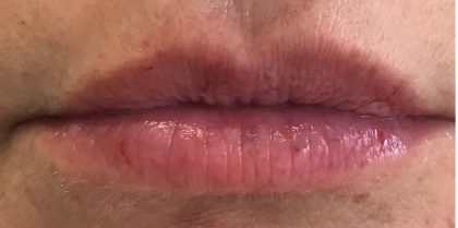 After lip fillers with hyaluronic acid injection in London - Dr Dray