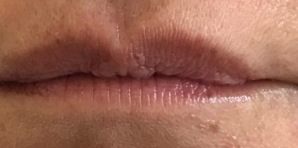 Before lip fillers with hyaluronic acid injection in London - Dr Dray