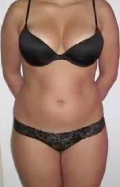 Before cryolipolysis treatment in London - Dr Dray, aesthetic medicine