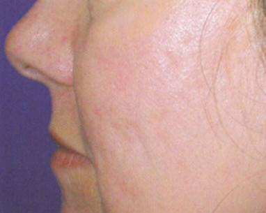 Photo after Fractional laser for Acne scar - Dr Dray, aesthetic medicine
