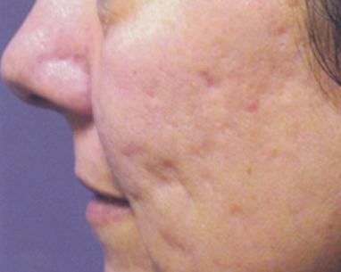 Photo before Fractional laser for Acne scar - Dr Dray, aesthetic medicine