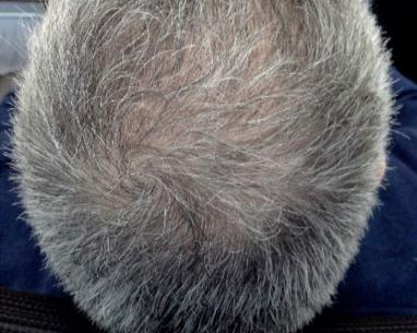 After FUE hair transplant in London - Dr Dray, aesthetic doctor