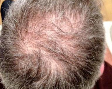 Before FUE hair transplant in London - Dr Dray, aesthetic doctor