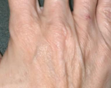 Before hand rejuvenation with hyaluronic acid in London - Dr Dray
