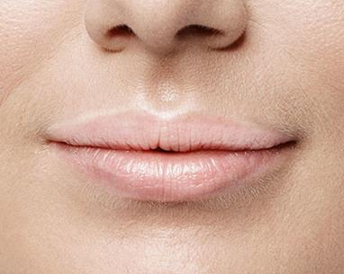 Before Lip Refresh with hyaluronic acid injection - Dr Dray London