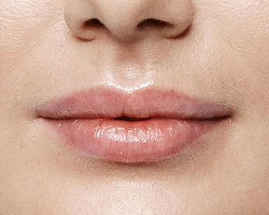 After Lip Refresh with hyaluronic acid injection - Dr Dray London
