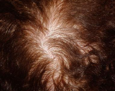 Photo after mesohair treatment for hair loss in London - Dr Dray