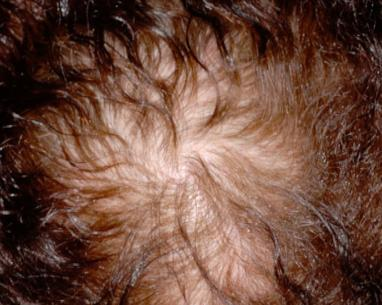 Photo before mesohair treatment for hair loss in London - Dr Dray