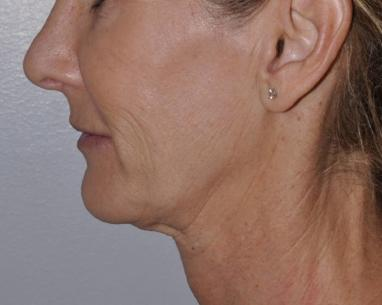 Before ultralift for neck lift in London - Dr Dray, cosmetic doctor